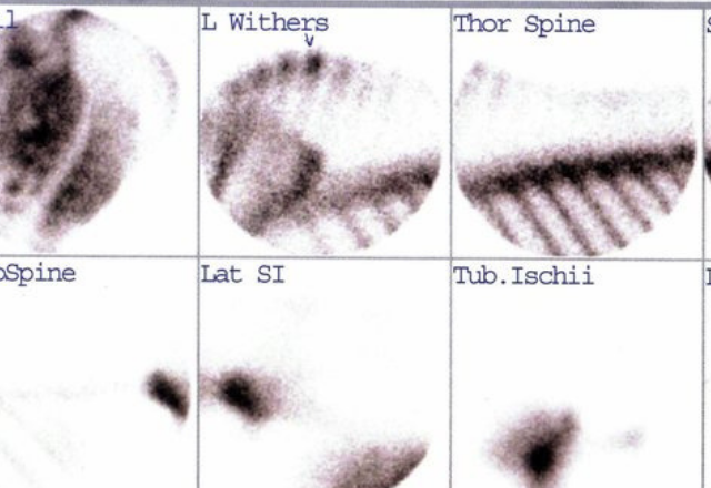 Images from a nuclear scintigraphy study