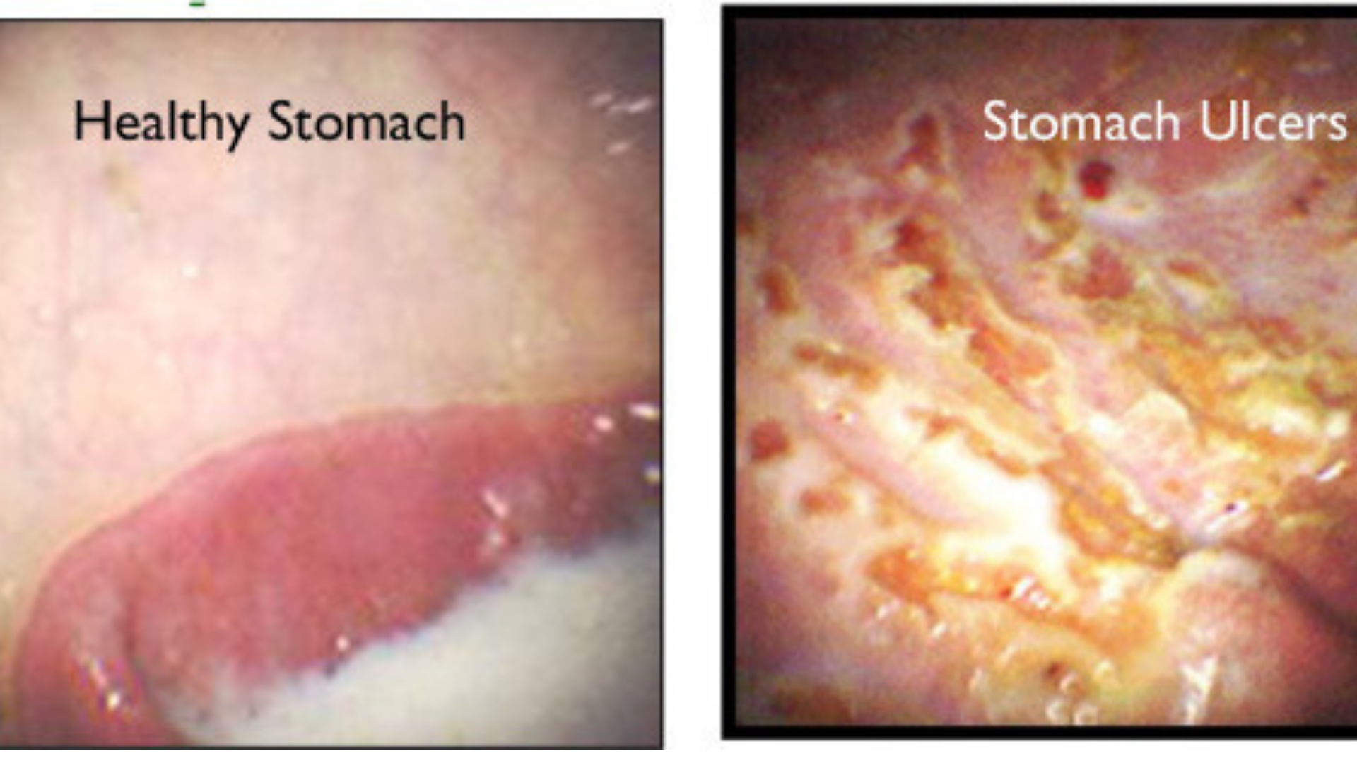 Gastroscopy images of healthy and ulcered stomachs